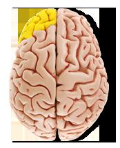 cerveau-jaune
